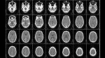 10 curiosidades sobre el funcionamiento del cerebro - Noticias de top10