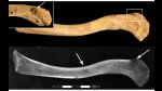 Hallan cuerpo de hombre que murió de cáncer hace 3.000 años - Noticias de egipto